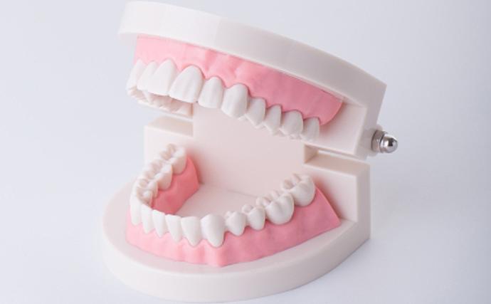 「人間みたいな歯」を持つサカナたち そのワケは人と類似した食生活?